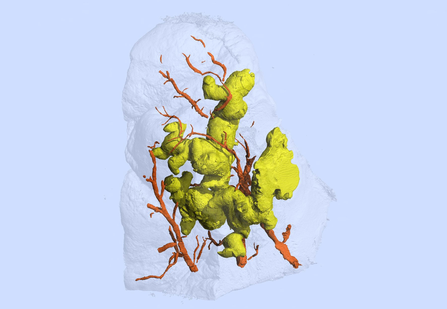 First 3-D view of TB granulomas alters paradigm of their shape and formation